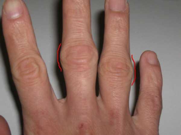 Мази от бурсита пальца стопы